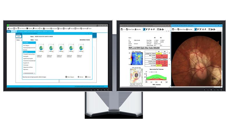 telas de visualização de exames de imagem em duas telas no result md e3